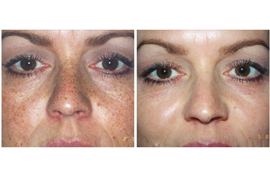 dermasweep before & after