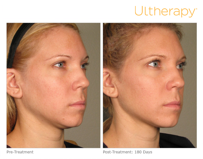 ultherapy-dr-beverly-friedlander-md-short-hills-nj