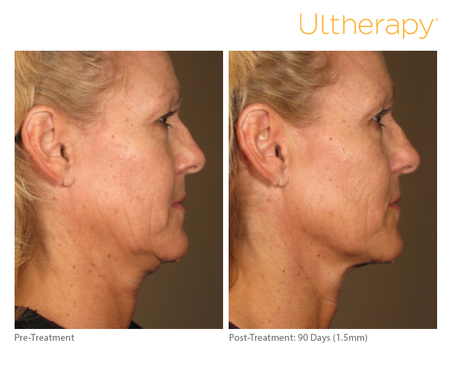 ultherapy-side-profile-dr-beverly-friedlander-short-hills-nj